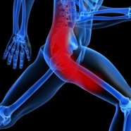 Sciatica: A Real Pain in the Behind